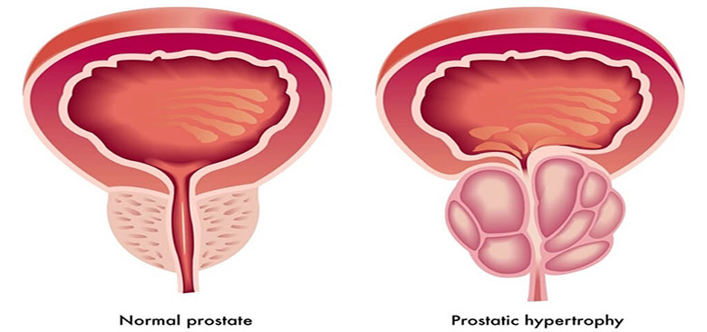 Benign-prostatic-hyperplasia-960913